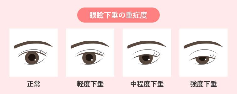 下垂 は 眼瞼 と