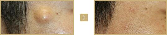 症例① 顔の粉瘤