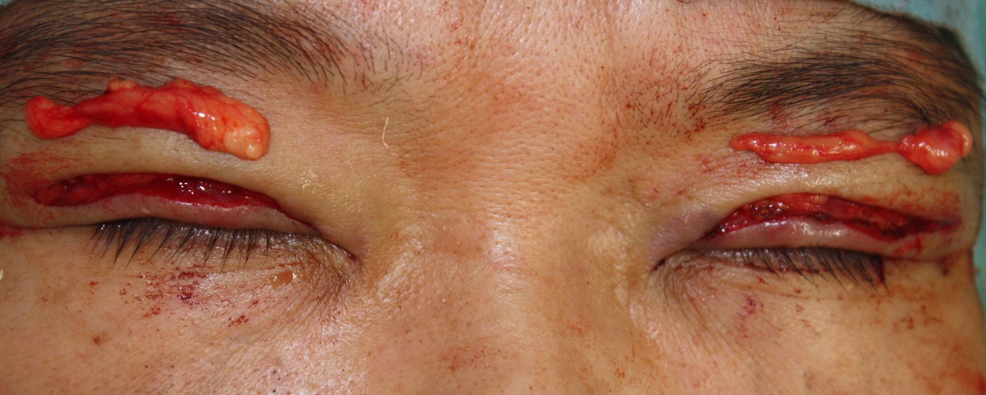 眼瞼下垂手術 Life Work Ssクリニック 皮膚科 美容外科