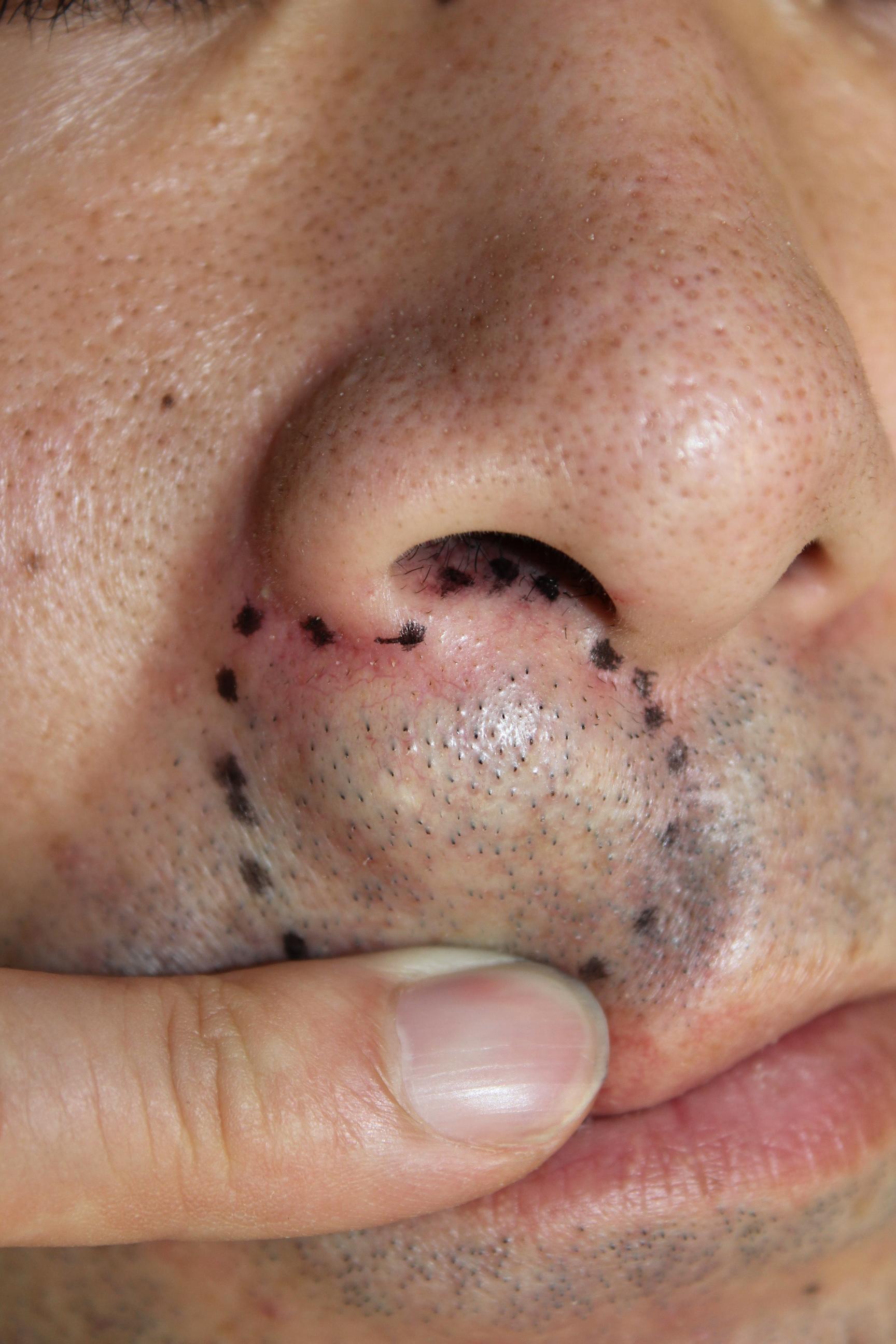 粉瘤 , SSクリニック , 皮膚科・美容外科 , 名古屋市中区 , Part 2