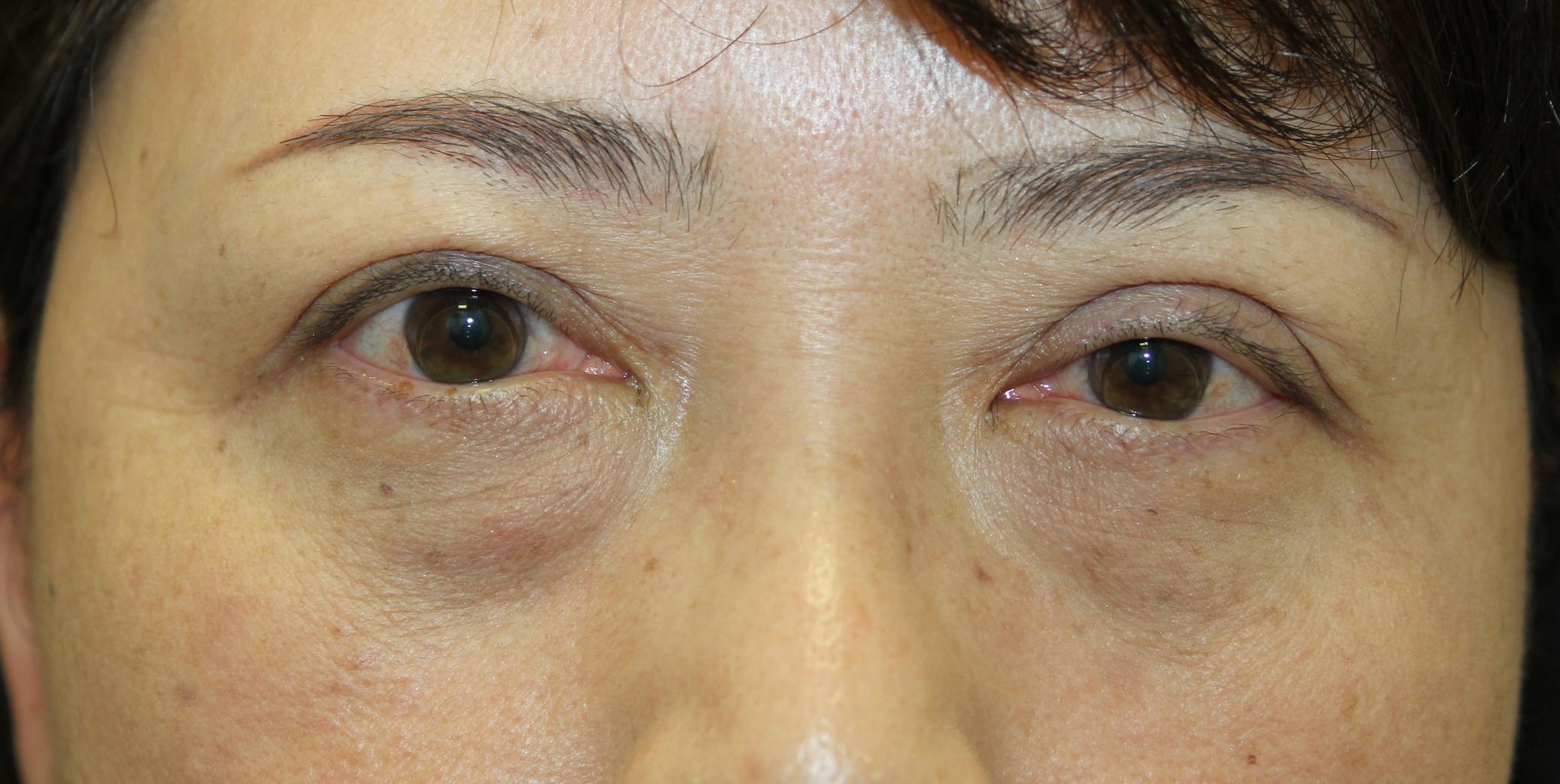 名古屋市内の総合病院形成外科で眼瞼下垂手術を受けられました。 左の瞼が上がらないと。