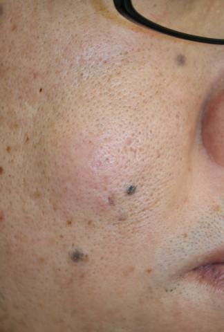 右頬 粉瘤
