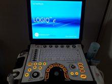 高周波プローブ エコー機器を導入