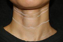 再生医療による首のシワ治療 W-PRP