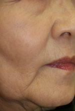 高齢者は下顎部が若返りのポイント