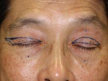 人生を変える眼瞼下垂手術