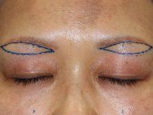眉毛下皮膚切除術とは?