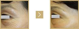 W-PRP療法(下眼瞼)