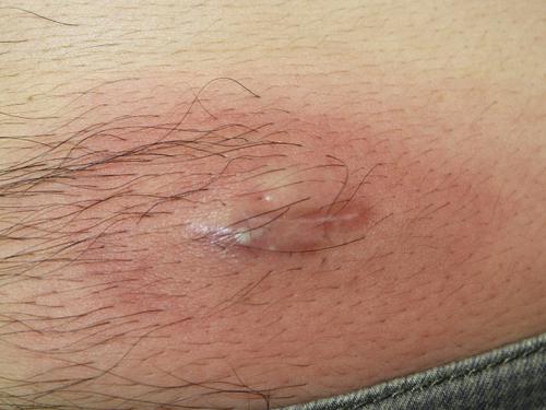 炎症を生じると赤く腫れます