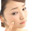 ニキビ治療
