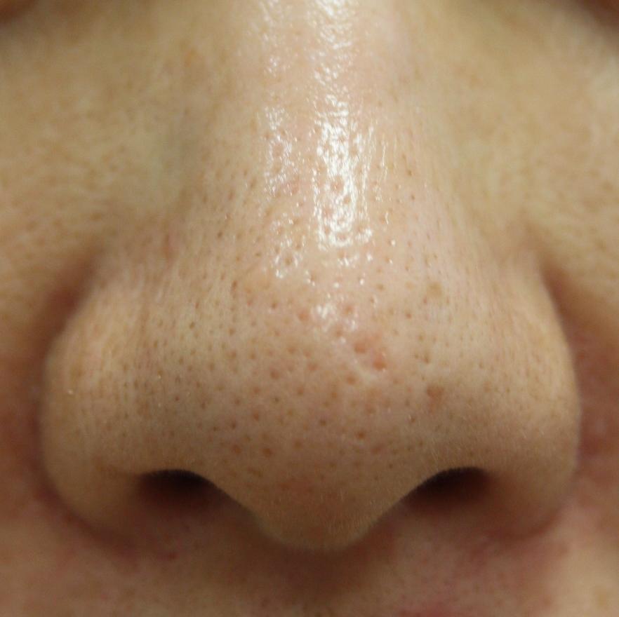 鼻 の 毛穴 レーザー