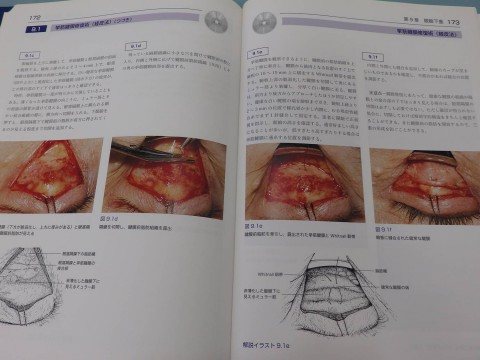 挙筋腱膜修復