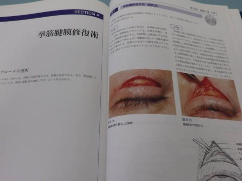 挙筋腱膜修復2