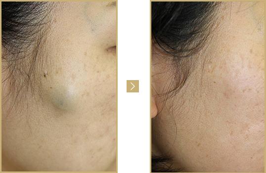 症例③ 顔の粉瘤