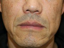 40歳代のほうれい線治療
