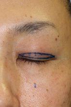 人生を変える眼瞼下垂手術 その2